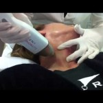 skin tightening with microneedling RF